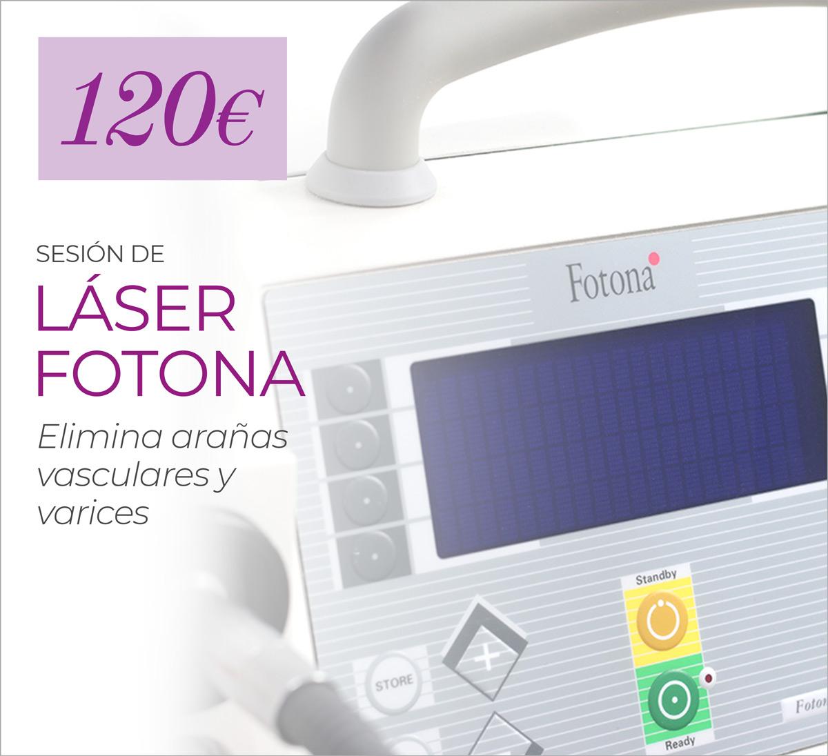 Sesión De Eliminación De Varices Y Arañas Vasculares Con Laser Fotona