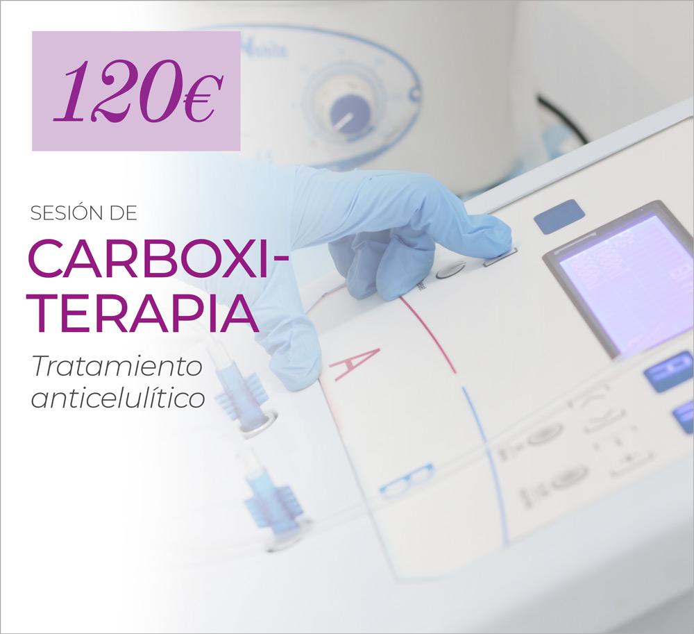 1 Sesión Para Eliminar Celulitis Con Carboxiterapia